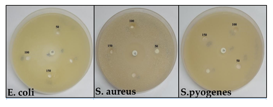 Facile and Green Synthesis of MgO Nanoparticles for the Degradation of Victoria Blue Dye under UV Irradiation and their Antibacterial Activity