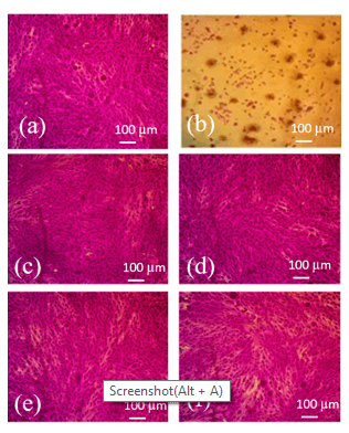Cellulose Acetate-Hydroxyapatite-Bioglass-Zirconia Nanocomposite Particles as Potential Biomaterial: Synthesis, Characterization, and Biological Properties for Bone Application